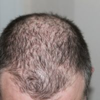 Mittel gegen Haarausfall – So stoppen sie den Haarausfall