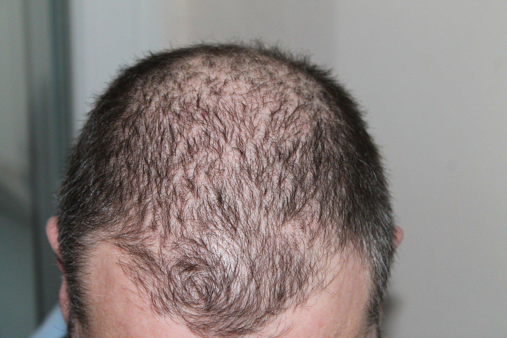 Diese Mittel können gegen Haarausfall helfen.