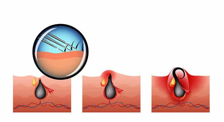 Eingewachsene Haare sicher und schmerzlos entfernen