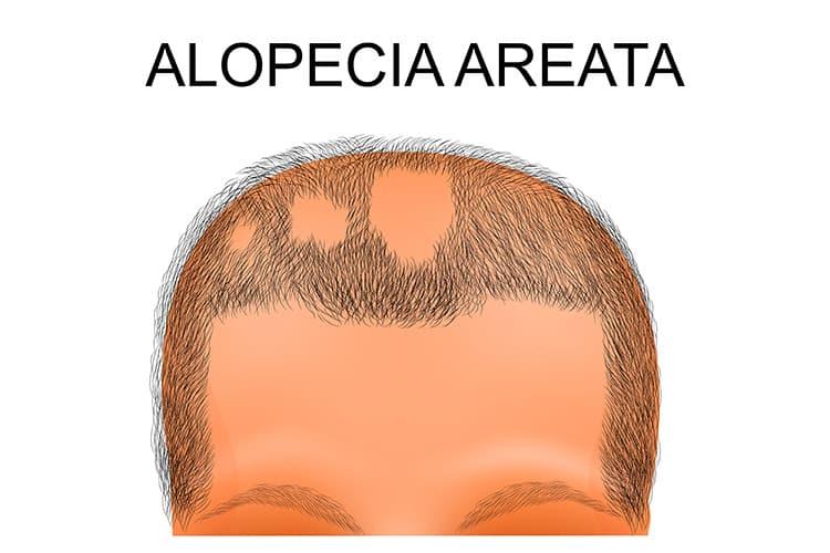 Kreisrunder Haarausfall (Alopecia areata) - eine Erkrankung, die Rätsel aufgibt