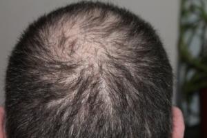 ausfallende Haare beim Mann