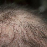 Alopecia Areata – Kreisrunder Haarausfall